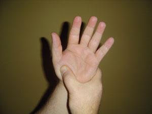 Index finger cramping