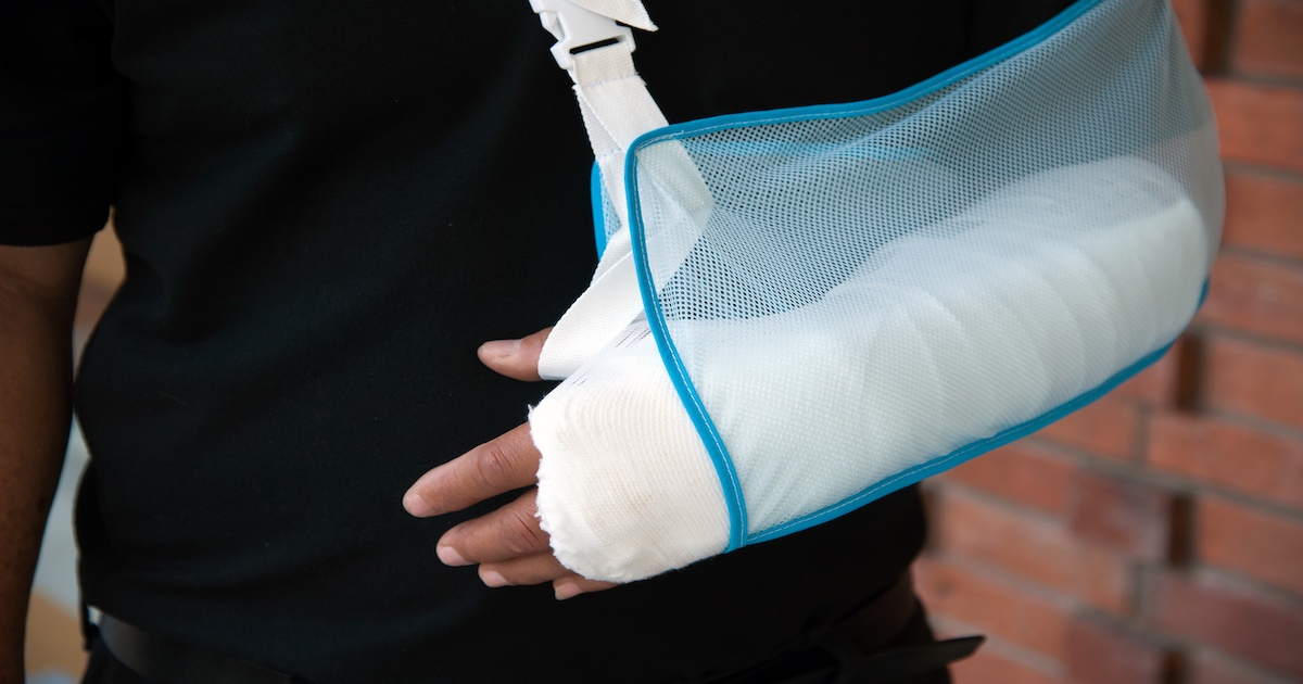 Conservative treatment with a sling can replace surgery for shoulder fractures